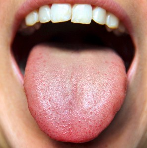 9 Secrets Your Tongue Can Reveal About Your Health Which You Don't know.
