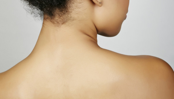 DIY: How To Get Rid Of Stretch Marks.