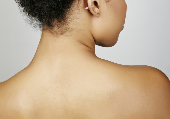 Three Important Steps To Follow If You Want To Get Rid Of Your Back Acne.