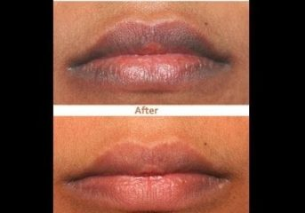 Here Is A Perfect Remedy To Dark Lips.
