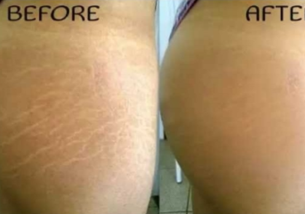 4 Natural Home Remedies to Fade Away Stretch Marks.