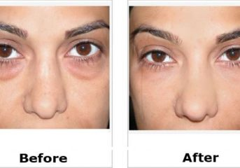 #BeautySecret ..How to Get Rid of Eye Bags!