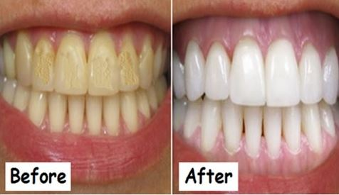 Whiten Your Yellow Teeth At Home Using Coconut Oil. Check out the Ways!