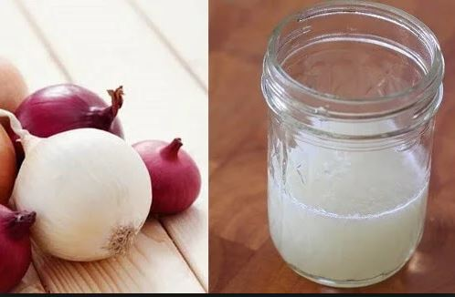 Grow Your Hair With Onion Juice. See How!